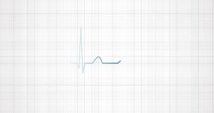 Heart rhythm EKG, ECG. Heart beat pulse.
