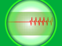 Heart's graph. A heart's electrocardiograph showing an abnormal curve with defects Stock Illustration