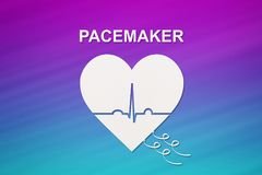 Heart shape with echocardiogram and PACEMAKER text. Cardiology concept stock photos