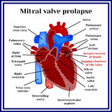Heart structure. Mitral valve prolapse. Cardiac pathology Royalty Free Stock Photos