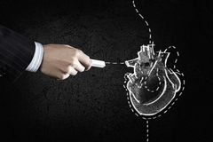 Heart surgery royalty free stock image
