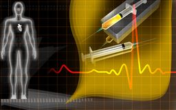Heart in a transparent body and syringe dropping m Stock Image