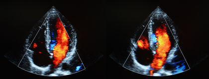 Heart ultrasound - echocardiography Stock Image