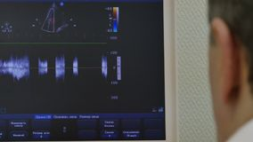 Heart ultrasound on monitor of medical equipment. Modern technologies in medicine. Doctor at work stock video