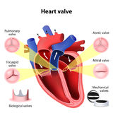 Heart valve surgery Stock Photo