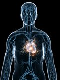 Heartattack Stock Image