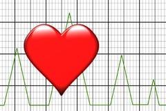 Heartattack Image libre de droits
