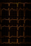 Heartbeat. Abstract illustration of different heartbeats from electrocardiograph Royalty Free Stock Image