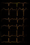 Heartbeat. Abstract illustration of different heartbeats from electrocardiograph Royalty Free Stock Photo