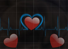 Heartbeat. Life line in an electrocardiogram Stock Photos