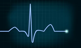 Heartbeat curve. Detailed illustration of of a heartbeat curve background Royalty Free Stock Photo