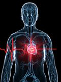 Heartbeat/heartattack Stock Images