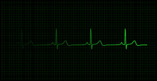Heartbeat on the monitor. Healthy heartbeat graph on the monitor Stock Photo