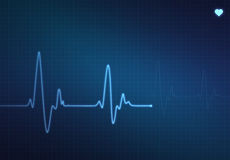 Heartbeat Monitor stock photo