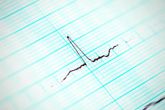 Heartbeat in motion Royalty Free Stock Image