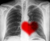 Heartbeat on x-ray. Isolated on black background with red heart Stock Images