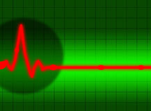 Heartbeat on the screen Royalty Free Stock Photos