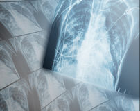 Heavy destructive changes in the lungs of the patients x-ray. Heavy destructive changes in the lungs of the patients x-ray Royalty Free Stock Photos