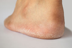 Heel cracked of foot Stock Images