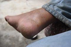 Heel. Dry skin on heel elderly Asian man Stock Photography
