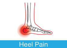 Heel pain outline. Outline of foot and bone which have pain on heel. This is medical illustration Stock Images