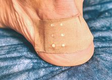 Heel with plaster. Leg of sports man with burn wound royalty free stock photography