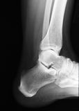 Heel Xray. Actual xray of an injured heel in a human foot Royalty Free Stock Images
