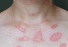 Heißer Hautausschlag stockbilder