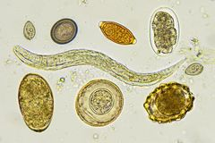 Helminthes in stool. Analyze by microscope stock photos