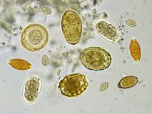 Helminthes in stool. Eggs of helminthes in stool, analyze by microscope royalty free stock image