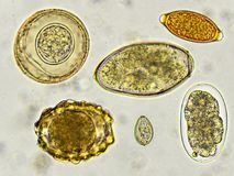 Helminthes in stool. Eggs of helminthes in stool, analyze by microscope stock photo