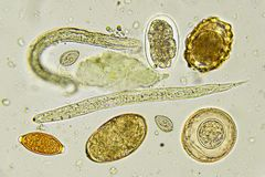 Helminthes in stool. Analyze by microscope stock images