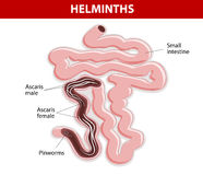 Helminths on Small intestine Stock Photo