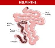Helmintos en el intestino delgado Foto de archivo