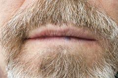 Hemangioma on the lip Stock Image