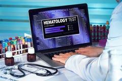 Hematology Test. doctor in lab examining blood sample in laptop Stock Photo