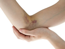 Hematoma Stock Photos