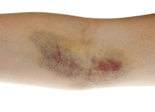Hematoma Royalty Free Stock Photography