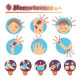 Hematomas Royalty Free Stock Photography