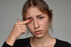Hembra adolescente con los ojos irritados Imagenes de archivo