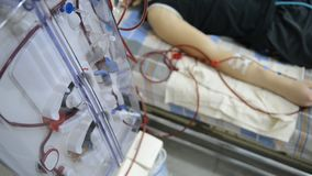 Hemodialysis machines with tubing. Hemodialysis machines with tubing and installations. Health care, blood purification, kidney failure, transplantation stock video
