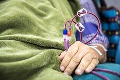 Hemodialysis w ludziach na wyposażeniu obrazy stock