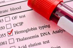 Hemoglobin typing test Stock Photo