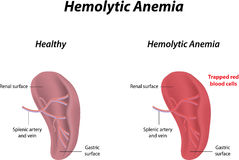 Hemolytic Anemia Stock Photo