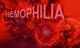 Hemophilia. The word Hemophilia   representing the blood disorder or disease that affects people who cannot form clots to close wounds Royalty Free Stock Image