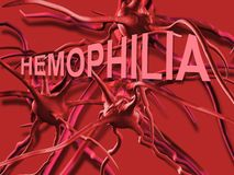 Hemophilia. The word Hemophilia   representing the blood disorder or disease that affects people who cannot form clots to close wounds Stock Photo
