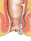 hemoroidy Zdjęcie Royalty Free