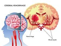 Hemorragia cerebral ilustración del vector