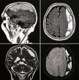 Hemorragia de cérebro Fotos de Stock Royalty Free