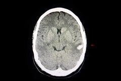 Hemorragia intracerebral do CT foto de stock royalty free
